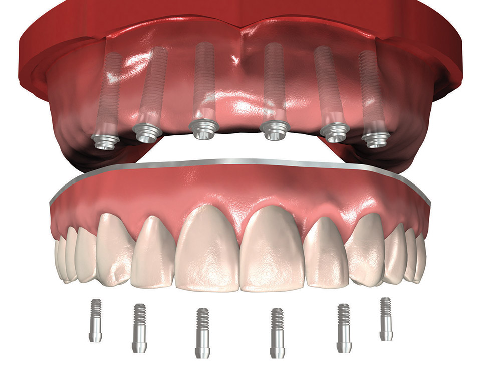 luc-cloutier-implantologie