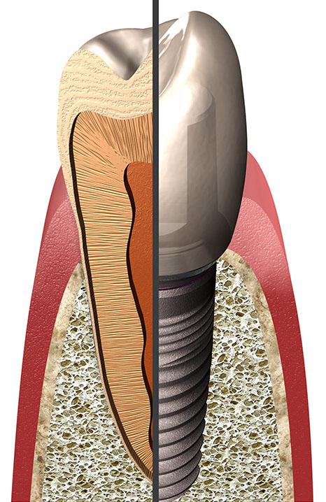 implantologie-image